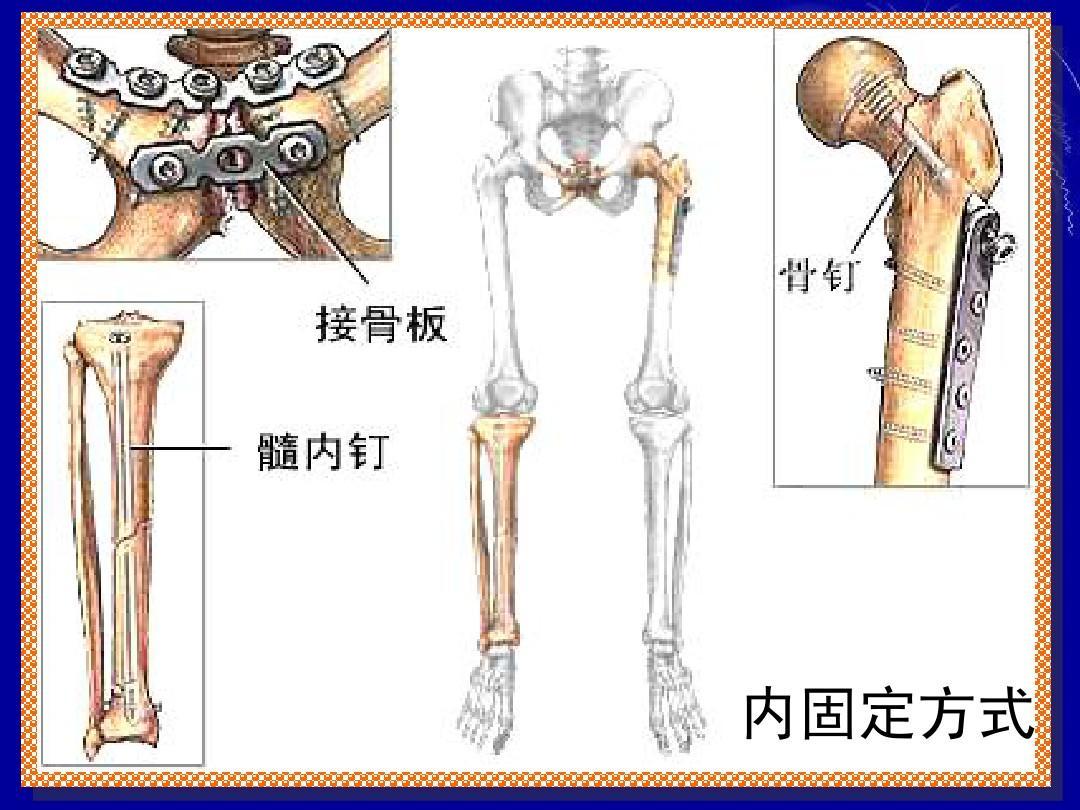 頸 大腿 部 骨折 骨
