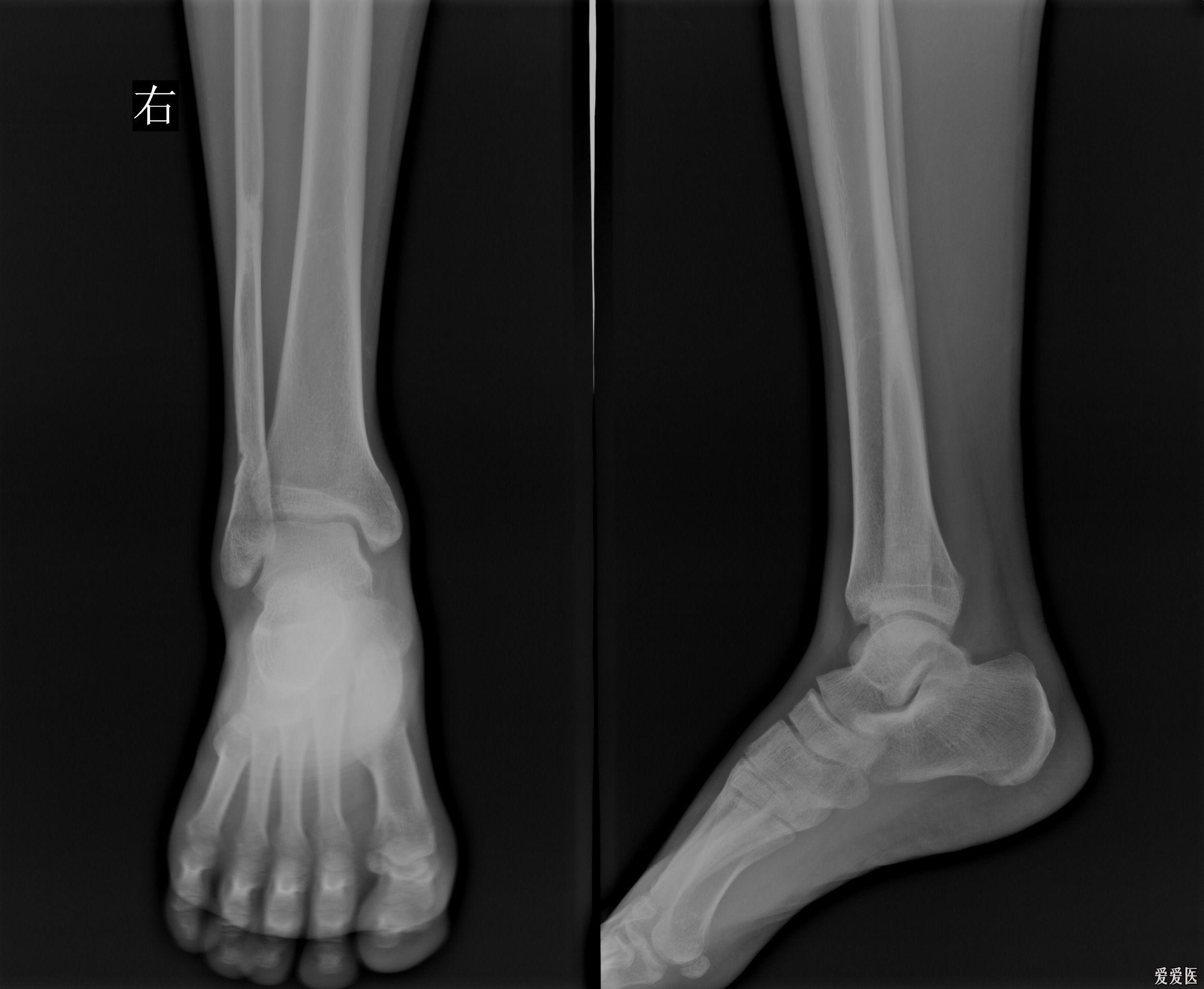 位 骨折 遠 腓骨 端 外くるぶしの骨折「腓骨遠位端部骨折」> 更新情報